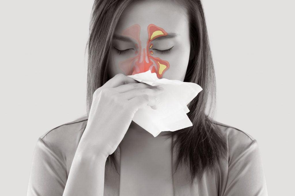 Ιγμορίτιδα ( Παραρρινοκολπίτιδα ) 1