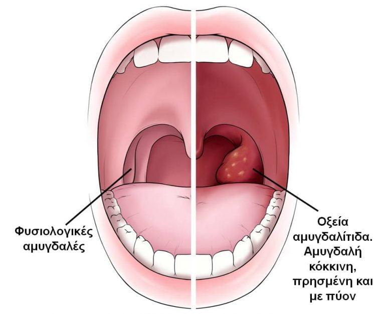 Αμυγδαλίτιδα 1