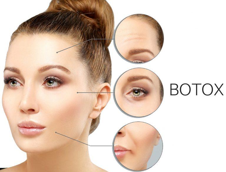 Θεραπεία αντιγήρανσης με βοτουλινική νευροτοξίνη 1